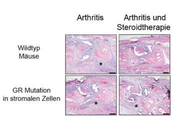 Volkskrankheit Rheumatoide Arthritis