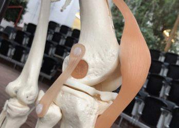 Kniearthrose mit intelligentem Knorpelersatz stoppen